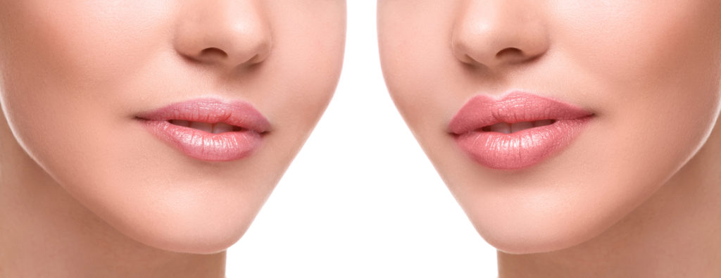 lip injections langhorne